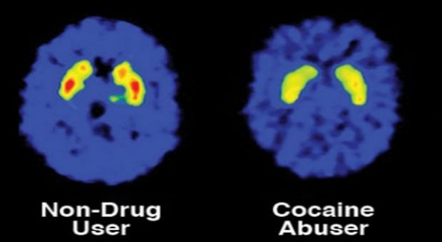 Brain images showing decreased dopamine2 receptors in the brain of a person addicted to cocaine versus a nondrug user. The dopamine system is important for conditioning and motivation, and alterations such as this are likely responsible, in part, for the diminished sensitivity to natural rewards that develops with addiction.